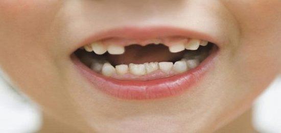 تفسير رؤية سقوط الأسنان في المنام لابن سيرين